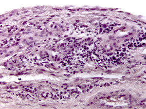 Biopsia sinoviale