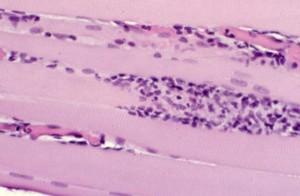 Biopsia muscolare