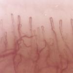 Capillaroscopia
