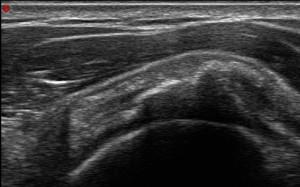 litoclasia percutanea ecoguidata di spalla