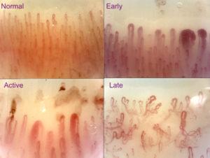Scleroderma pattern