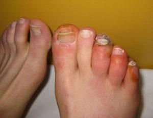 3. Fenomeno di Raynaud con lesioni